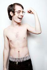 testosterone-deficiency