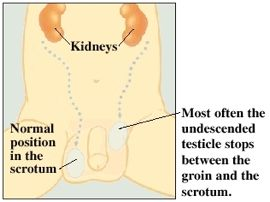 Undescended-testicle
